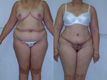 Abdominoplasty and liposuction 2
