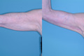 Arm Lift BY surgical Excision 6a