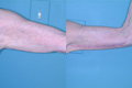 Arm Lift BY surgical Excision 6b