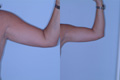 Arm Lift by Liposuction 1b