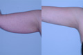 Arm Lift by Liposuction 5b