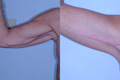 Arm Lift by Surgical Excision 8a