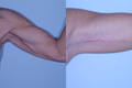 Arm Lift by Surgical Excision 8b