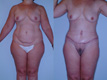 Body sculpting Abdomen and Breast2a