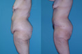 First stage body sculpting vertical and horizantal abdominoplasty