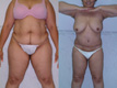 sculpting by abdominoplasty and exyensive liposuction 2