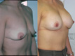 Breast Lift and Breast Implant 4a