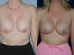 Breast Lift and Repositioning of Implant 1a