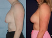 Breast Lift and Repositioning of Implant 1c