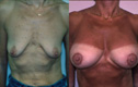 Breast lift and Implant 2b