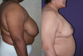 Breast Reduction 10b
