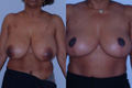 Breast Reduction 12a