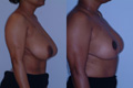 Breast Reduction 12b