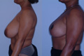 Breast Reduction 12c