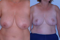 Breast Reduction 14a
