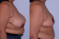 Breast Reduction 15c