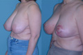 Breast Reduction 17a