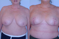 Breast Reduction 2a