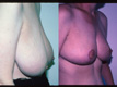 Breast Reduction 3b