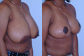 Breast Reduction 4b