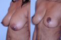Breast Reduction 6b