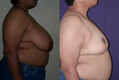 Breast Reduction 8b