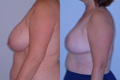 Breast_Reduction_11c