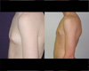 Gynecomastia by excision and liposuction 1a