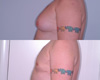 Gynecomastia by excision and liposuction 2a