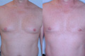 Gynecomastia by excision and liposuction 3a
