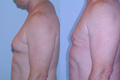 Gynecomastia by excision and liposuction 3b
