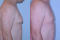 Gynecomastia by excision and liposuction 3c