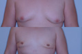 Gynecomastia by excision and liposuction 5b