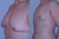 Gynecomastia by excision and liposuction 5c
