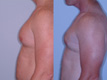 Gynecomastia by excision and liposuction 6a