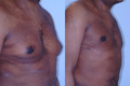 Gynecomastia by excision and liposuction 8b
