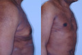 Gynecomastia by excision and liposuction 8c