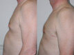 Gynecomastia by excision and liposuction 9a
