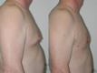 Gynecomastia by excision and liposuction 9b