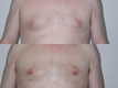 Gynecomastia by excision and liposuction 9c