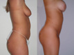Liposuction Abdomen and Flanks  2b