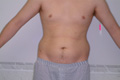 Liposuction Abdomen and Flanks 7b