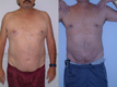 Liposuction Abdomen and Flanks 9a