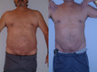 Liposuction Abdomen and Flanks 9c