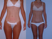 Liposuction Abdomen, Hips and Flanks 18a