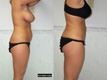 Liposuction Abdomen, Hips and Flanks 2c