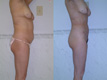 Liposuction Abdomen, Hips and Flanks3c