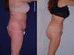 Liposuction Abdomen, Hips, Lateral thighs 1b