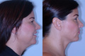 Liposuction Neck 1a