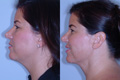 Liposuction Neck 1b